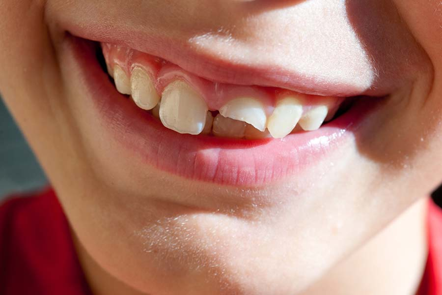 How bad is a chipped tooth